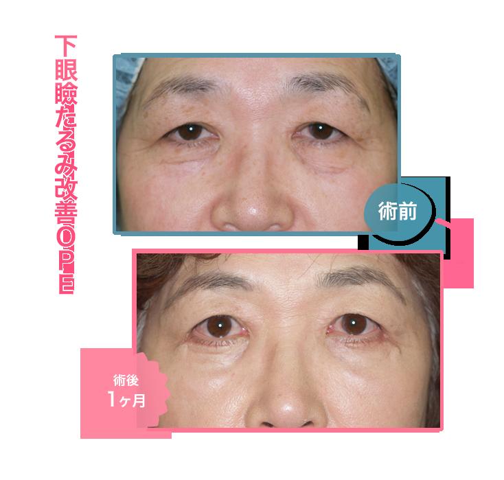 下眼瞼たるみ改善OPE