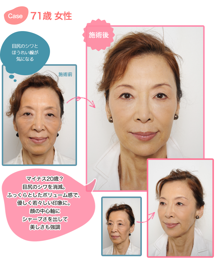 hyaluronic-lift-case71f