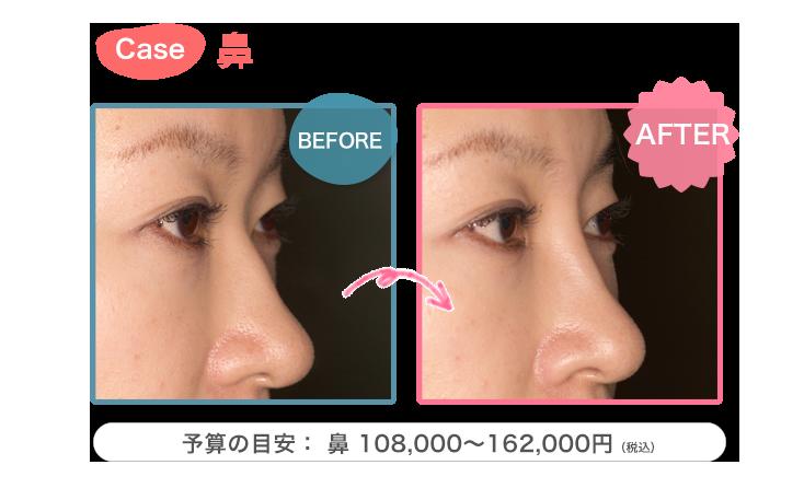 ヒアルロン酸症例 鼻