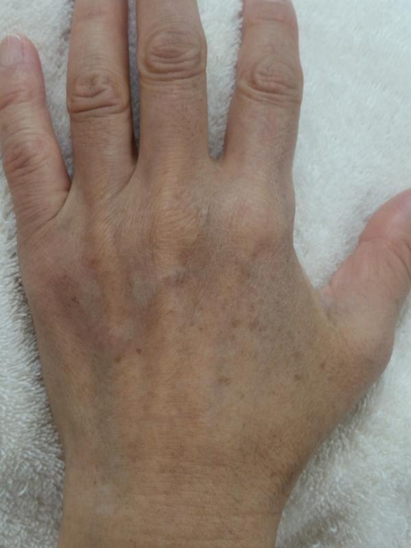 年齢を隠せない手肌のケア