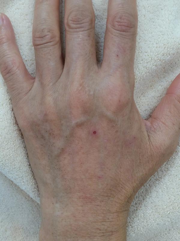 年齢を隠せない手肌のケア(前回の続き)