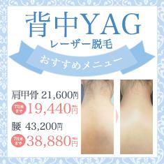 YAG背中キャンペーン