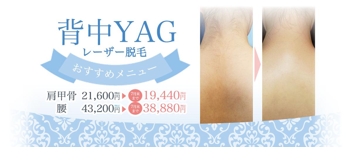 YAG 背中 キャンペーン